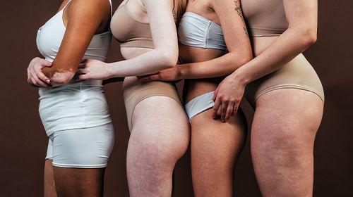 Was hilft gegen Cellulite? Fakten, Mittel & Mythen